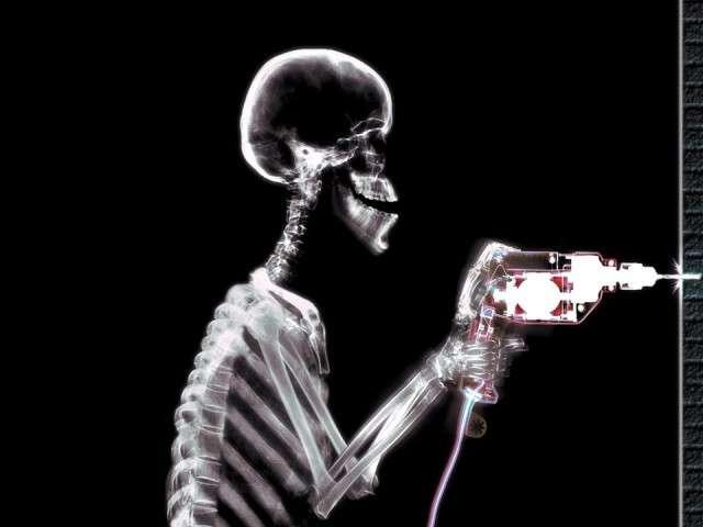 X-Ray xr17.jpg